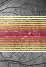 Automatisierte Beurteilung der Schädigungssituation bei Patienten mit altersbedingter Makuladegeneration (AMD)