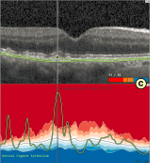 Visual analysis of retinal changes with optical coherence tomography